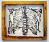 rib cage with non art materials
